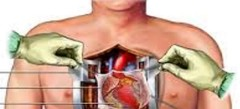 клевые Операция на сердце по интернету