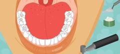 flash игры лечить зубы с друзьями